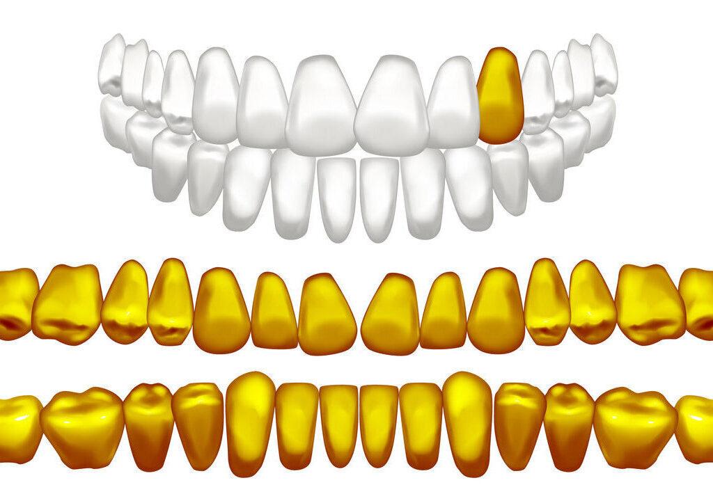 Der Ankauf von Zahngold in Berlin: Dentalgold zu Geld machen